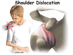 dislocation的图片释义。 如果您认为该图片不合适,可以上传新图片来帮助我们改进