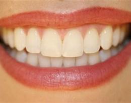 mouth的图片释义。 如果您认为该图片不合适,可以上传新图片来帮助我们改进