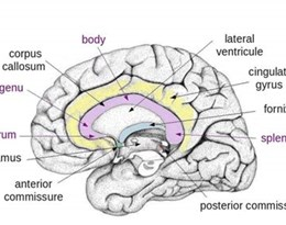 corpus callosum的图片释义。 如果您认为该图片不合适,可以上传新图片来帮助我们改进