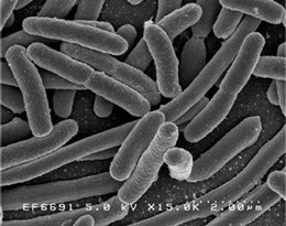 Methanobacterium的图片释义。 如果您认为该图片不合适,可以上传新图片来帮助我们改进