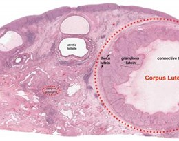 corpus luteum的图片释义。 如果您认为该图片不合适,可以上传新图片来帮助我们改进