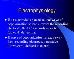 electrophysiology的图片释义。 如果您认为该图片不合适,可以上传新图片来帮助我们改进